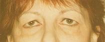 blépharoplastie préopératoire chirurgie esthétique des paupières, traitement des rides du visage, Ophtamologie Nancy