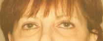 blépharoplastie post opératoire chirurgie esthétique des paupières, traitement des rides du visage, Ophtamologie Nancy
